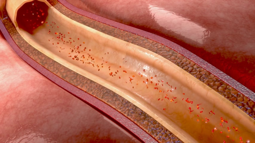 angioplasty : Blood clot in coronary artery