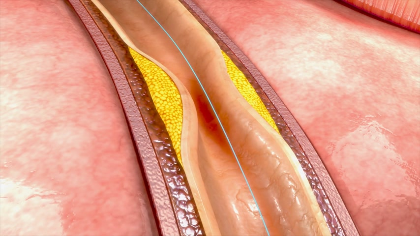 angioplasty : Coronary angioplasty Stock Footage