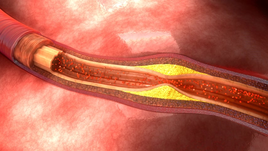 diseases : Atherosclerosis
