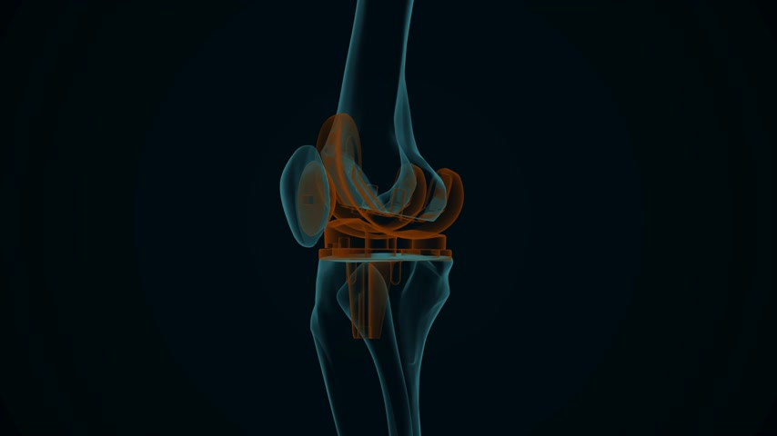 рентгенологическое : X-ray of a human knee with knee replacement isolated on a black background