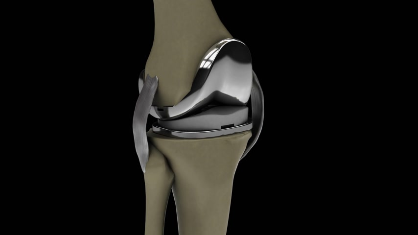 celkový : Human knee with knee replacement isolated on a black background 4k video 3d render Dostupné videozáznamy