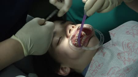 ortodonta : Orthodontic Treatment. Teeth with dental braces. Bite correction. Open-mouthed teenage boy lying in the dental chair while the orthodontist is attaching the braces on teeth. HD