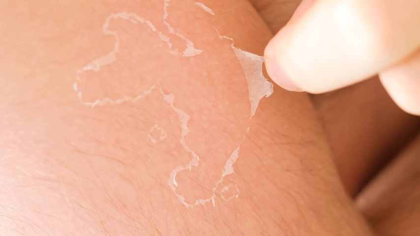 irritação : Man flaking removing peeling burnt skin after exposing too much to the sun at the beach or mountains Vídeos