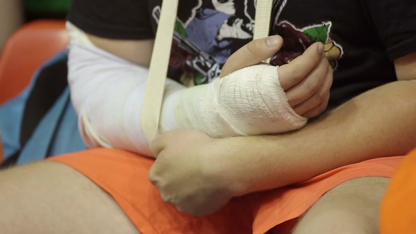 рука : Child with a Broken Arm Стоковые видеозаписи