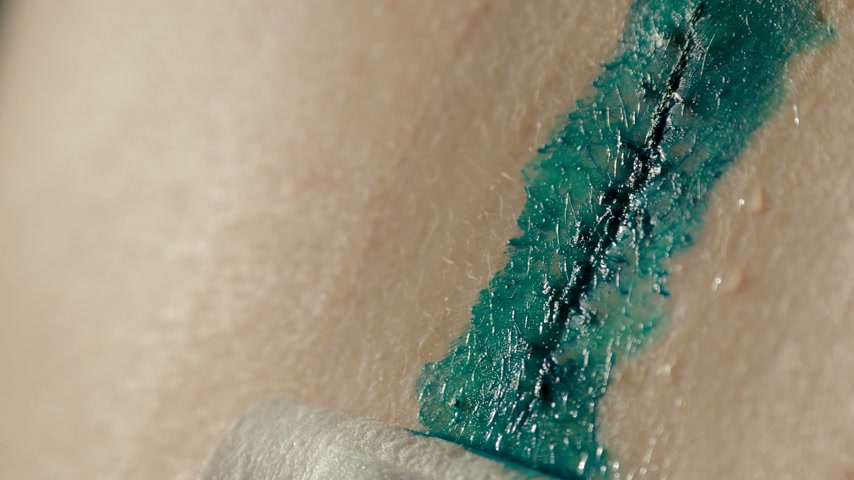 litteken : Covering scar after removal of surgical sutures with brilliant green . Large nevus has been excised surgically with a scalpel. Preventive measure against skin cancer.