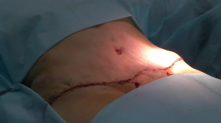 ferida : Abdominal liposuction. Stitches on the abdomen after surgery Stock Footage