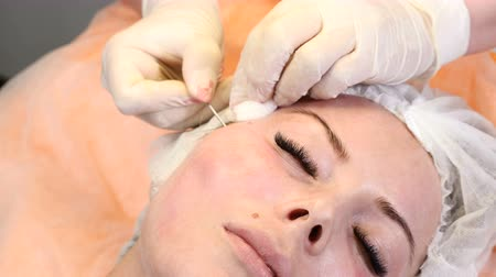 omlazení : Healtcare clinic. Young female client gets thread face lifting procedure. Beautician in gloves making face anti-aging to a female face Dostupné videozáznamy