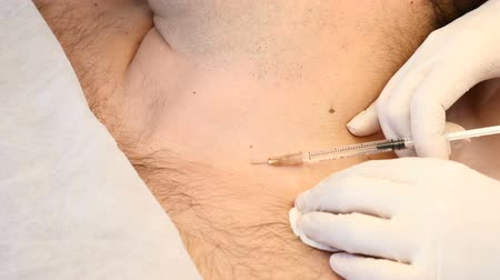 rejuvenescimento : Papillomas removal. Close up. Doctor removing mole in surgical procedure by burning it with medical tools and equipment