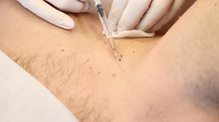 mole : Papillomas removal. Close up. Doctor removing mole in surgical procedure by burning it with medical tools and equipment on male body Stock Footage