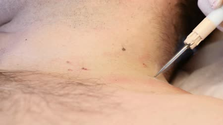 chirurgia : Surgery concept. Papillomas removal. Close up. Doctor removing mole in surgical procedure by burning it with medical tools and equipment on male body Wideo