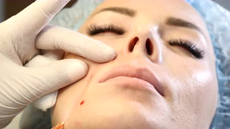 mezoterapia : Close up of woman in beauty centre and cosmetologist with syringe in hands. Doctor making anti wrinkle injections. 4k Wideo