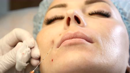 penetrating : Beauty industry. Close up of cannula needle penetrating into female face. Beautician in gloves making injection. 4k