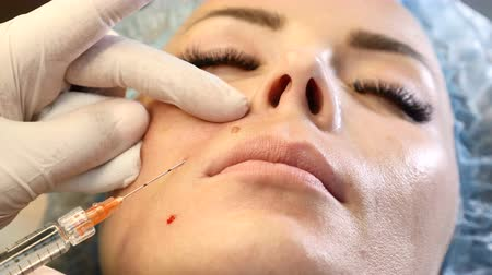 penetrating : Woman in healthcare clinic. Beauty injection procedure. Close up of cosmetologist holding a syringe with cannula needle penetrating female face. face skin care.4k