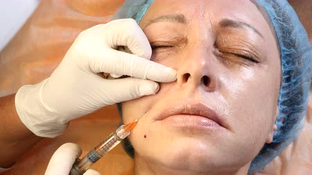 mezoterapia : Facial cosmetology. Close up of female client getting face injections. Senior female patient ivisit beautician. Doctor makes injection. 4k