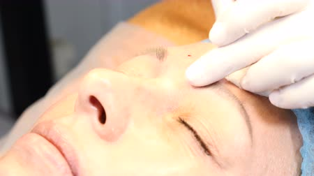 mezoterapia : Senior woman visit cosmetologist. Injections of youth. hyaluronic acid injections to glabellar wrinkle. 4k Wideo