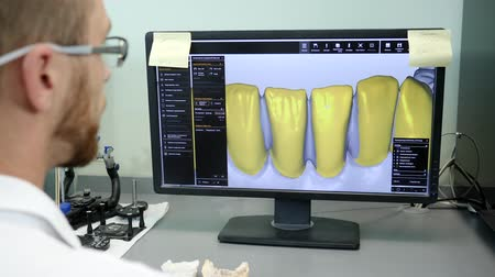 scholar : 3D modeling of dental implants on a computer specialist in eyeglasses works on new project on computer with yellow stickers indoors