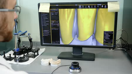 scholar : 3D dental digital modeling, technician in eyeglasses works in special program and looks at image of human teeth on monitor close-up