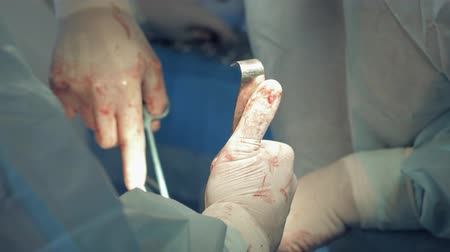 surgical light : medical hands performing invasive surgery on a patient in the hospital operating room, surgeon use tools and remov blood from incision using suction tube