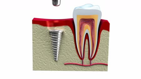 dişçi : Anatomy of healthy teeth and dental implant in jaw bone.