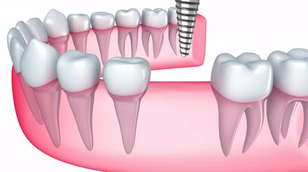 raiz : Implant is embedded in the gum Vídeos
