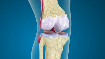 the inflammation : Osteoporosis of the knee joint.