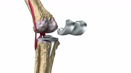diz : Knee and titanium hinge joint process Stok Video