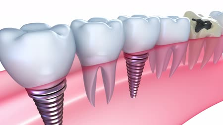 dentysta : Dental implants in the gum