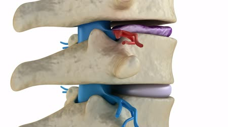 protrude : Spinal cord under pressure of bulging disc