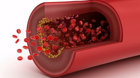 damarlar : Cholesterol plaque in blood vessel