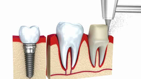 cobalt : Dental crown installation process, isolated on white