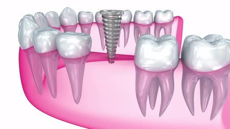 installation lectrique : Tooth implant installation, Medically accurate 3D animation Stock Footage