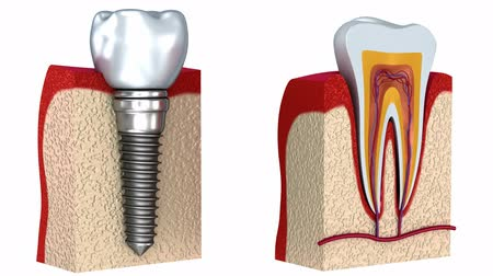 зубы : Anatomy of healthy teeth and dental implant in jaw bone. 3D animation.