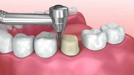 raiz : Dental crown installation process, Medically accurate 3d animation