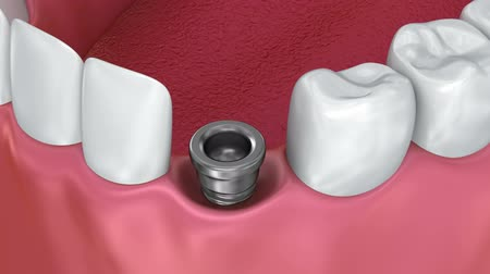 proces : Tooth implant installation process, Medically accurate 3d animation Dostupné videozáznamy