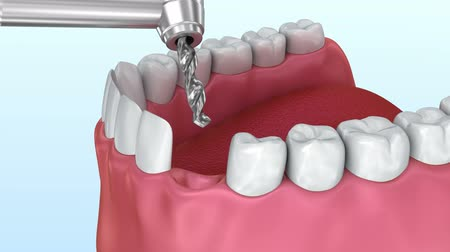 coroa : Tooth implant installation process, Medically accurate 3d animation Vídeos