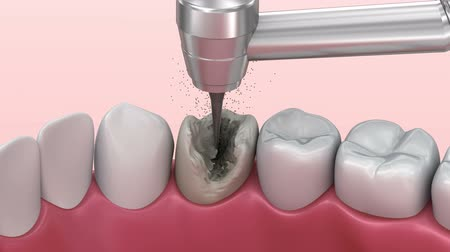 coroa : Teeth with caries, treatment. Medically accurate tooth 3D animation.