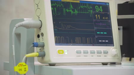 ecg : Electrocardiogram in hospital surgery operating theater emergency room showing patient heart rate. Monitoring patients vital sign in operating room. Cardiogram monitor during surgery in operation room. Stock Footage
