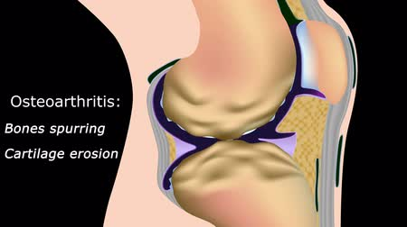 the inflammation : Osteoarthritis of knee joint with text