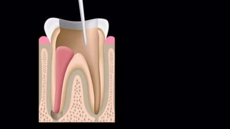 enchimento : Root canal treatment