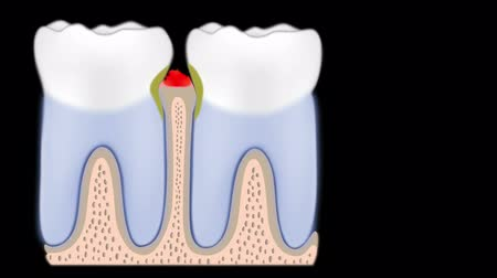 choroba : Periodontal disease