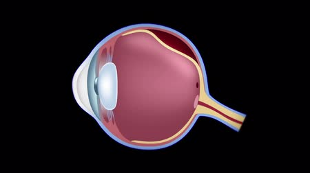 Retinal detachment Vídeos