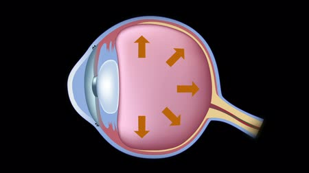 diagramas : Glaucoma Archivo de Video