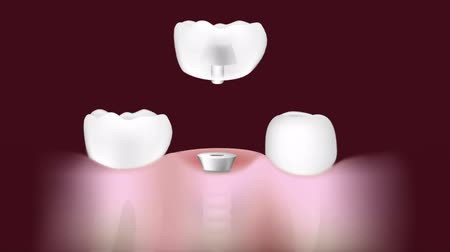 parafusos : Dental implant