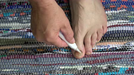 nehet : Men healing foot nails fungus infection Dostupné videozáznamy
