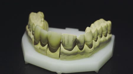 насаждение : Close up view of ready denture 5