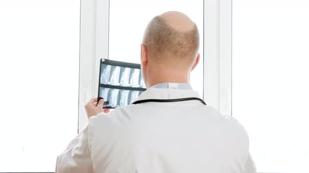 csontok : Traumatologist looking x-ray of spine bones on window light background on clinic. Back view surgeon watching backbones x-ray in hospital Stock mozgókép