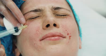 lupa : 4k Close-up of a young woman having plastic surgery injection in the beauty salon