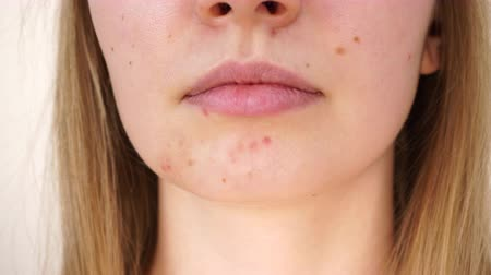 Girl showing her face with acne Dostupné videozáznamy