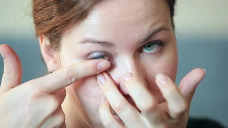 kontakt : Young Caucasian female inserting blue contact lens in eye Wideo