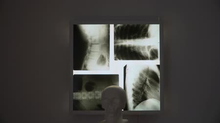 medical scan : in a dark room on the lamp hanging x-ray pictures. the bottom appears skull Gibbs. the chest is represented by the back of the spine and neck.